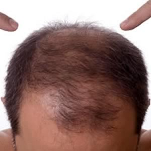 Hair loss treatment and cure for baldness