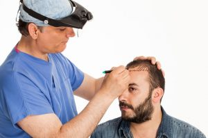 Hair loss surgery - Hair transplant for men