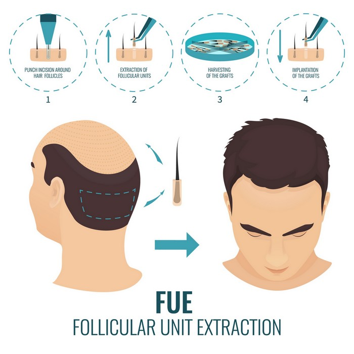 FUE hair transplant - new hairline design, get back your old look