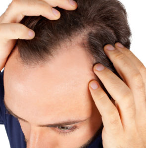 Hair loss remedies: stimulate hair regrowth